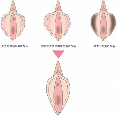 陰部の整形手術