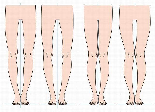 O脚の種類