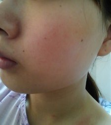 赤ら顔のスキンケア方法
