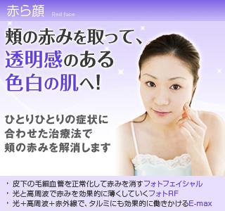 美容外科で赤ら顔を治す