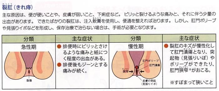 きれ痔症状