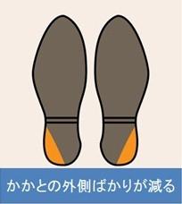 O脚の靴底の減り方