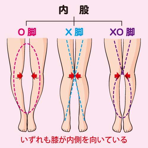 O脚の特徴