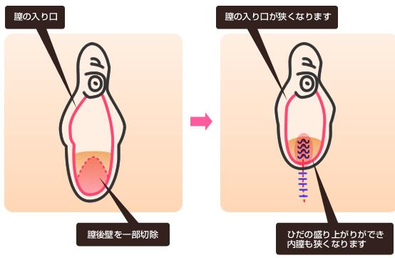 膣の縮小手術